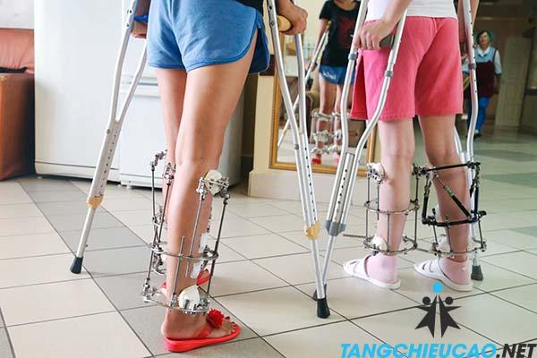 tác hại phẫu thuật tăng chiều cao